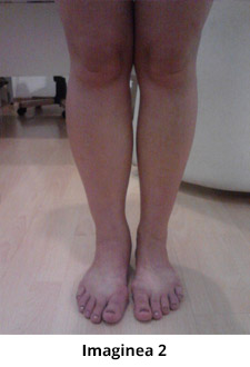 imagini varice la picioare