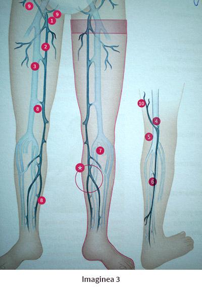 varicoză genunchii bolnavi