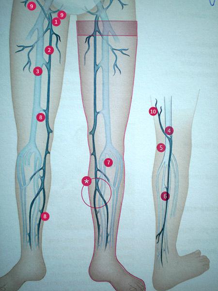 diverse sisteme venoase crema cu feedback de picioare varicoase