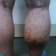 medicină varicoză preț remedii populare în vene varicoase în timpul sarcinii