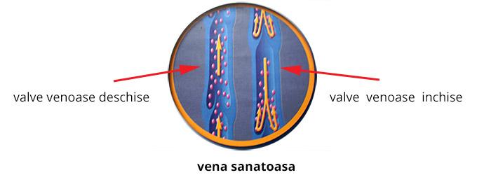venele varicoase comune cu reflux