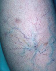 combaterea condițiilor de acasă varicoase