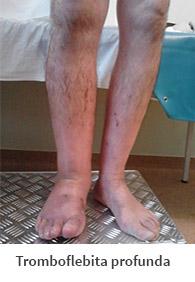 cauze de varicoză și tromboflebită