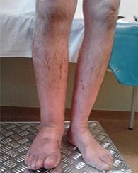 stați sub picioare în varicoză