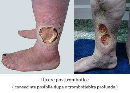 tromboflebita ulceroasa valve în vene în picioare
